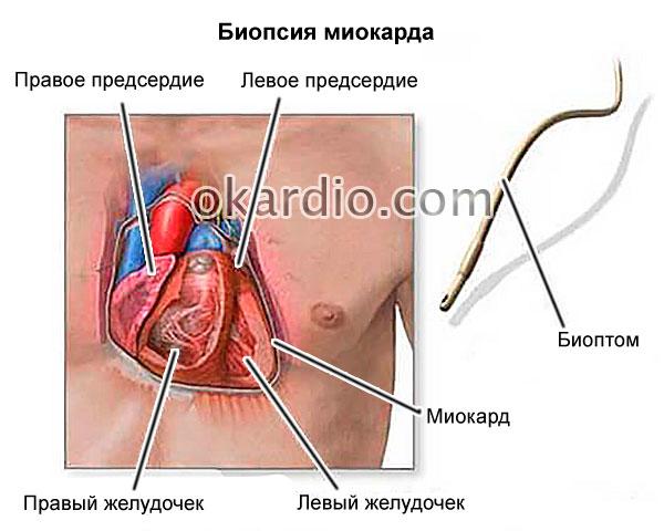 биопсия миокарда