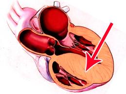 Что такое миокардиодистрофия (дистрофия миокарда): симптомы и лечение