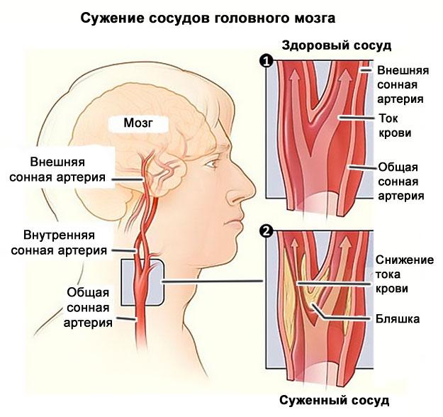 Сосудистые заболевания головного мозга - причины, диагностика и лечение сосудистых заболеваний головного мозга в клинике ЕВРОМЕДПРЕСТИЖ