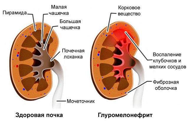 Сужение сосудов головного мозга: причины, симптомы, диагностика и ...