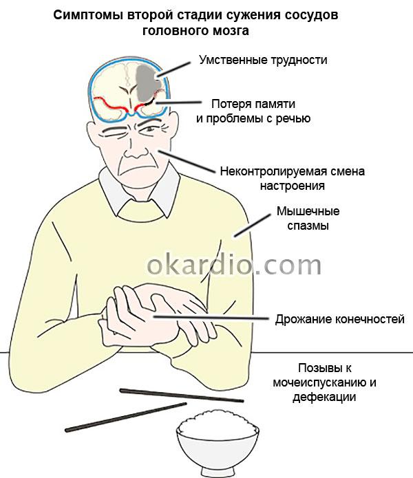 симптомы второй стадии сужения сосудов головного мозга