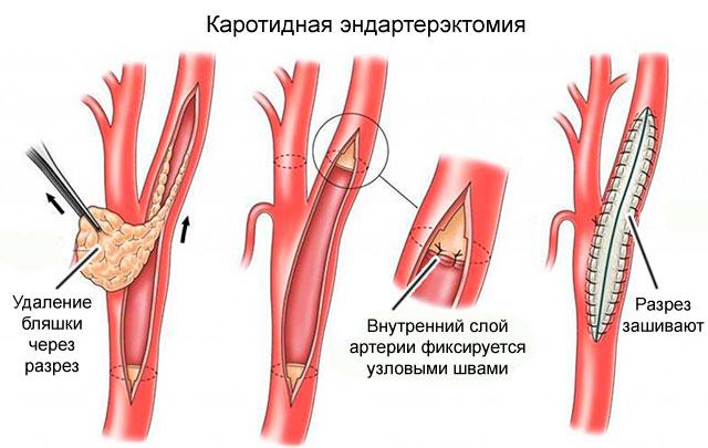 каротидная эндартерэктомия