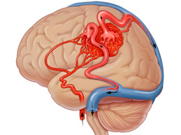 Что происходит при сужении сосудов головного мозга, симптомы и лечение патологии