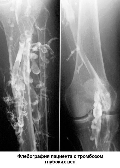 флебография пациента с тромбозом глубоких вен