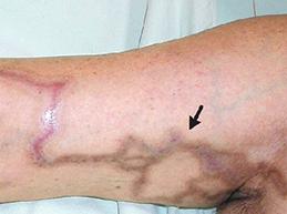 Полная характеристика флебита: причины, диагностика, лечение и прогноз