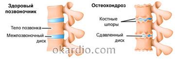 шейный остеохондроз