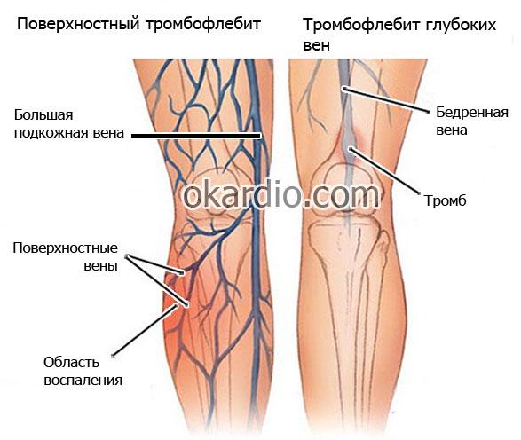 поверхностный тромбофлебит и тромбофлебит глубоких вен