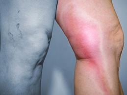 Характеристика тромбофлебита: суть патологии, симптомы и лечение