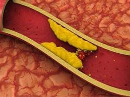 Признаки, симптомы и лечение тромбоза