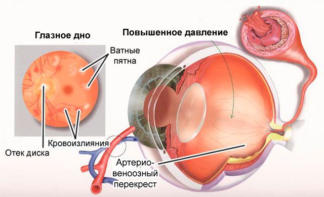 нарушения сетчатки глаза