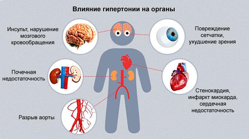 Гипертония глаз слабой степени что это такое