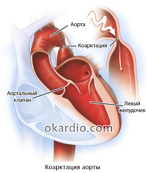 коарктация аорты