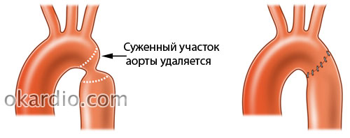 прямой анастомоз