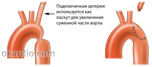 резекция сужения аорты