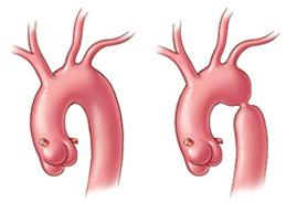 Что происходит при коарктации аорты, причины, диагностика и лечение