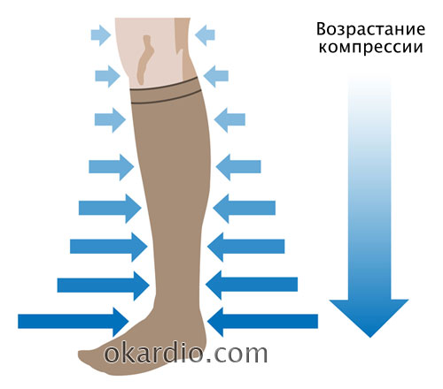 распределение компрессии по ноге