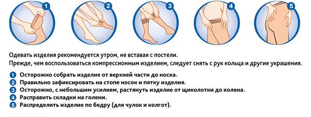 правила надевания компрессионного белья