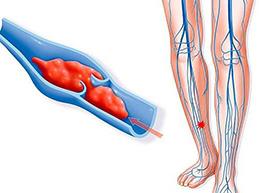Обзор тромбофлебита глубоких вен нижних конечностей: причины и лечение