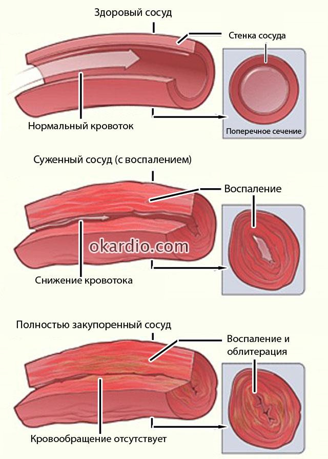 стадии развития эндартериита