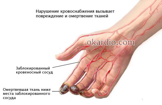 некроз тканей, вызванный эндартериитом