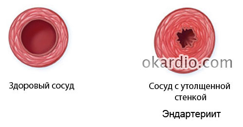 эндартериит