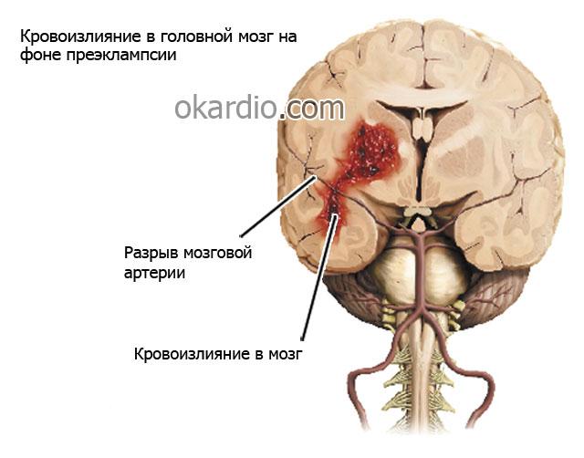кровоизлияние в мозг на фоне преэклампсии