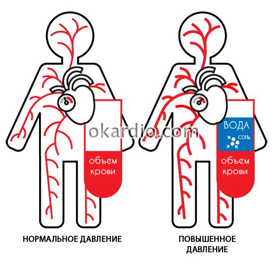 артериальное давление при нормальном и повышенном содержании жидкости и ионов натрия в организме