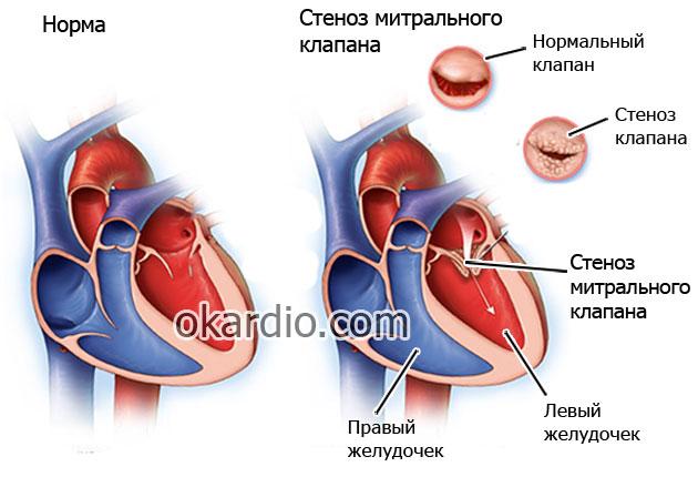 Митральный стеноз: причины, симптомы, стадии и лечение патологии