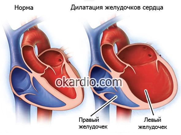 расширение желудочков сердца