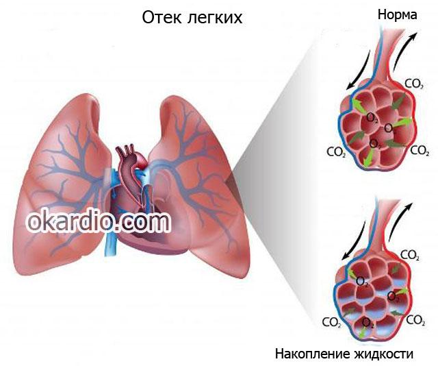 отек лёгких