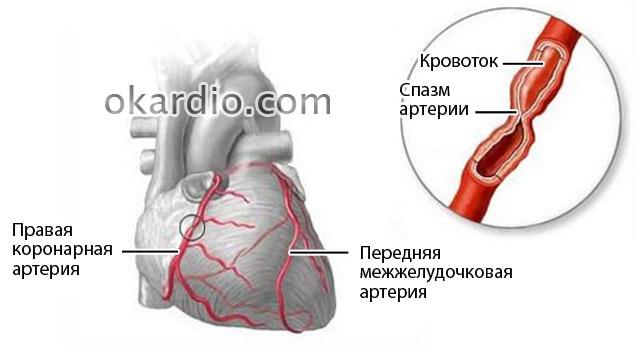 Ангиоспазм сосудов нижних конечностей лечение