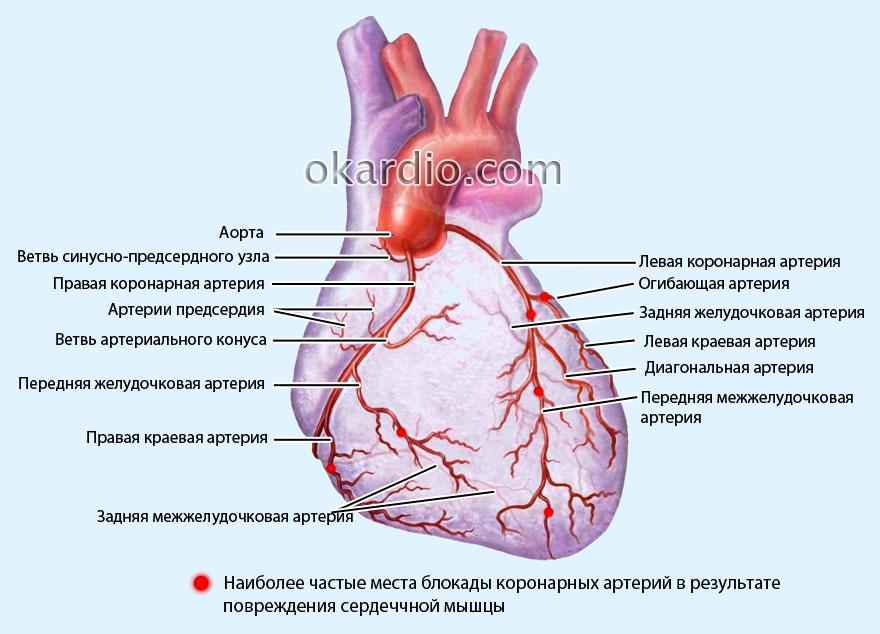 Острый инфаркт миокарда - лечение инфаркт миокарда - причины, симптомы и лечение