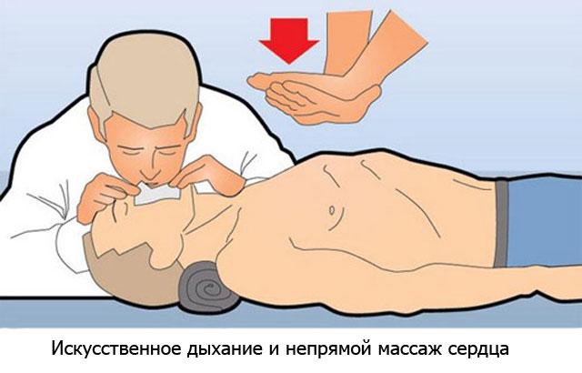непрямой массаж сердца и искусственное дыхание