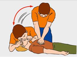 Когда и как правильно делать искусственное дыхание и непрямой массаж сердца