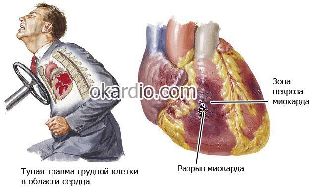 разрыв миокарда вследствие тупой травимы грудной клетки