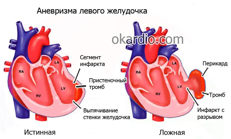 Разрыв сердца: причины, виды, симптомы и лечение, прогноз для жизни