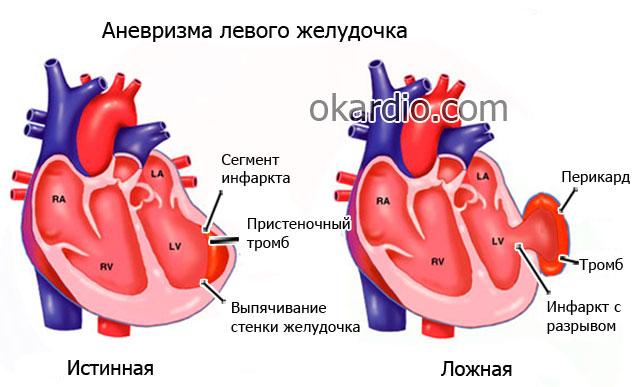 аневризма левого желудочка сердца