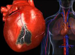 разрыв сердца при инфаркте миокарда