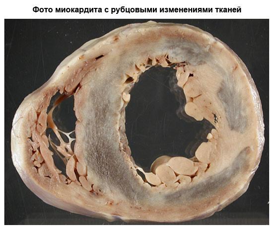 фото миокардита с рубцовыми изменениями тканей