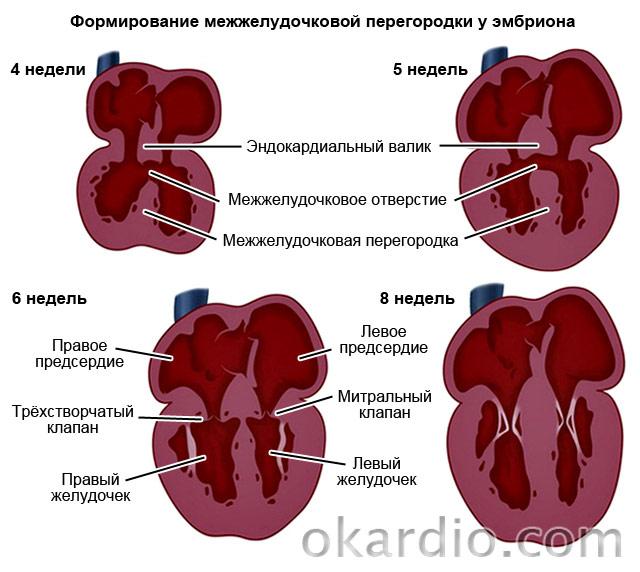 формирование межжелудочковой перегородки у эмбриона