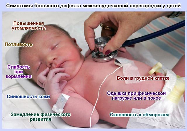 симптомы большого дефекта межжелудочковой перегородки у детей