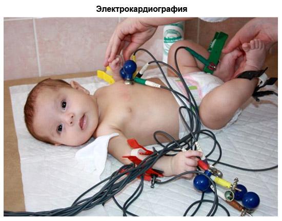 электрокардиография у малыша