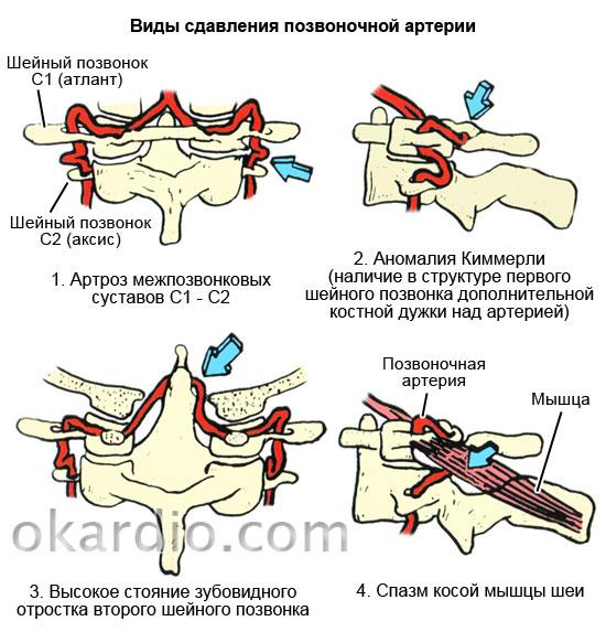 виды сдавления позвоночной артерии