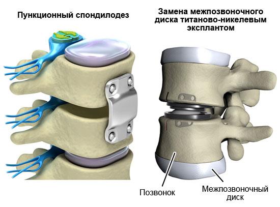 хирургическое лечение синдрома позвоночной артерии