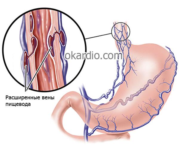 высокий риск развития кровотечения из расширенных вен пищевода