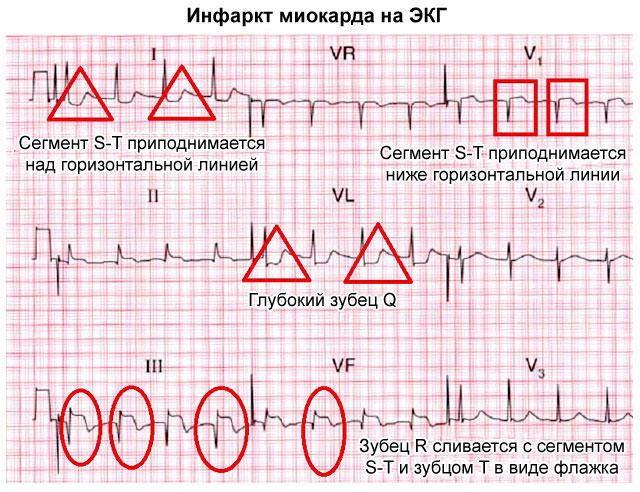 Локализация инфаркта миокарда по ЭКГ