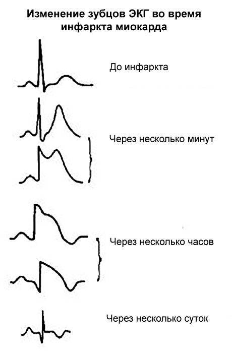вид зубцов ЭКГ до инфаркта и после