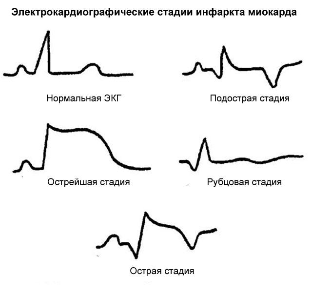 электрокардиографические стадии инфаркта
