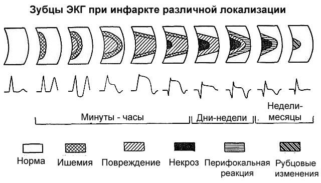 электрокардиограмма при инфарктах различной локализации
