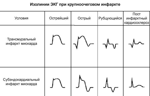 изолинии ЭКГ при крупноочеговом инфаркте